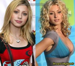 Aly Michalka Plastic Surgery Breast Implants