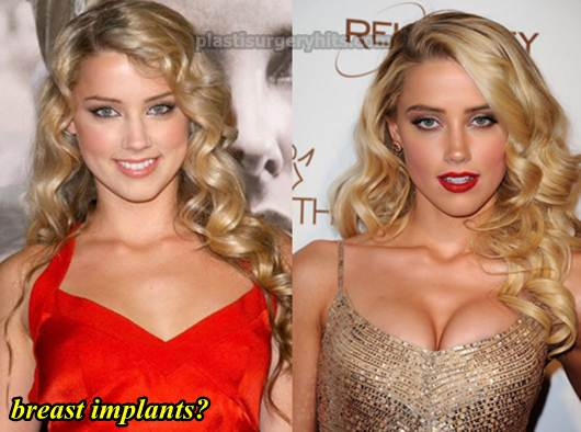 Amber Heard Plastic Surgery Breast Implants