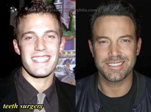 Ben Affleck Plastic Surgery Before After