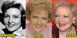 Betty White Plastic Surgery