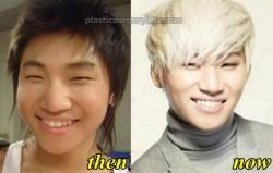 Big Bang Daesung Plastic Surgery fact or Rumor