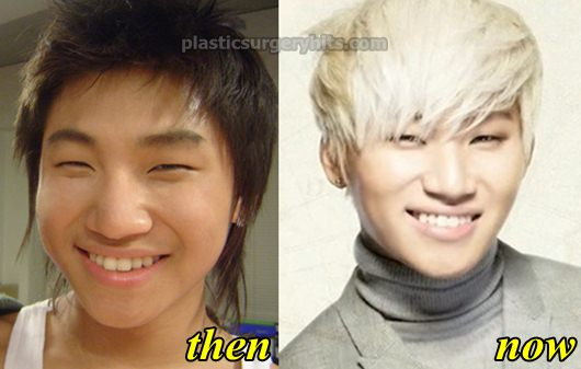 Big Bang Daesung Plastic Surgery fact or Rumor