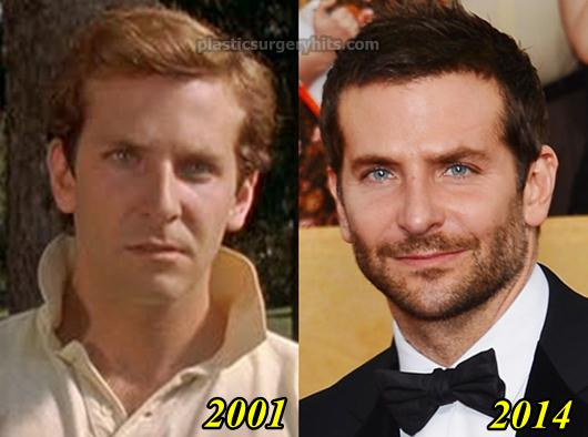 Bradley Cooper Plastic Surgery Before and After