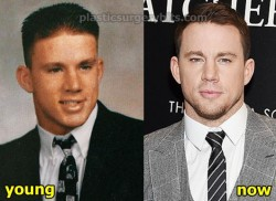 Channing tatum Plastic Surgery Fact or Rumor