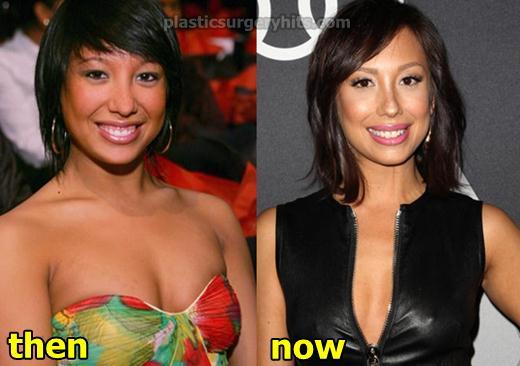 Cheryl Burke Plastic Surgery Fact or Rumor