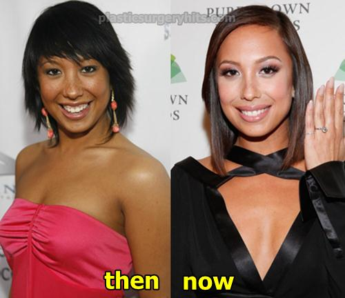 Cheryl Burke Plastic Surgery Rumor was Denied