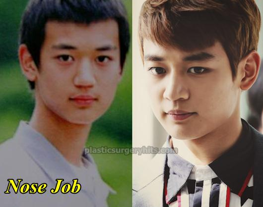 Choi Minho Plastic Surgery Nose Job