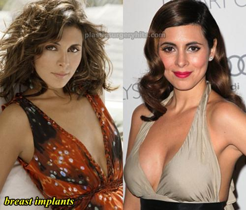 Jamie Lynn Sigler Plastic surgery Breast Implants