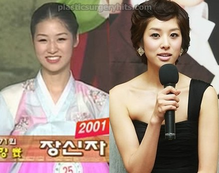 Jang Shin Young Plastic Surgery Before and After