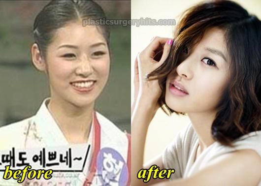 Jang Shin Young Plastic Surgery