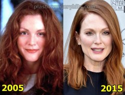 Julianne Moore Plastic Surgery Speculation