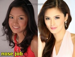 Kim Chiu Plastic Surgery Before and After Nose Job
