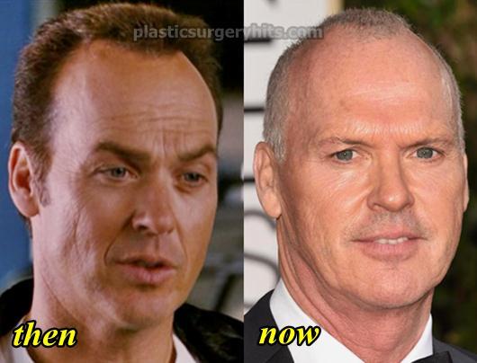 Michael Keaton Plastic Surgery