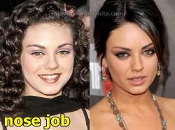 Mila Kunis Plastic Surgery Nose Job