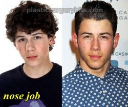 Nick Jonas Plastic Surgery Nose Job