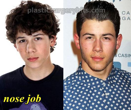 Nick Jonas Plastic Surgery Nose Job
