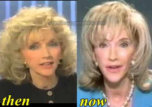 Rexella van Impe Plastic Surgery Before and After