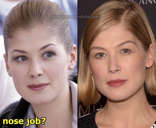 Rosamund Pike Nose Job