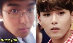Ryeowook Plastic Surgery nose Job