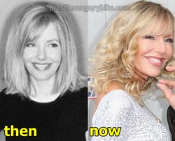 Shelby Chong Plastic Surgery