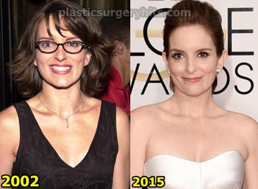 Tina Fey Plastic Surgery Fact or Rumor