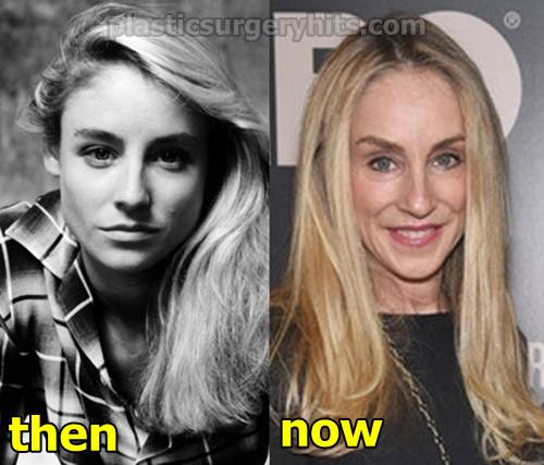 Tracy Pollan Plastic Surgery Before and After