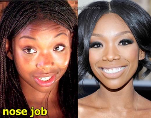 Brandy Norwood Plastic Surgery Nose Job