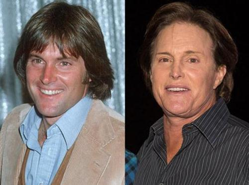 Bruce Jenner Bad Plastic Surgery