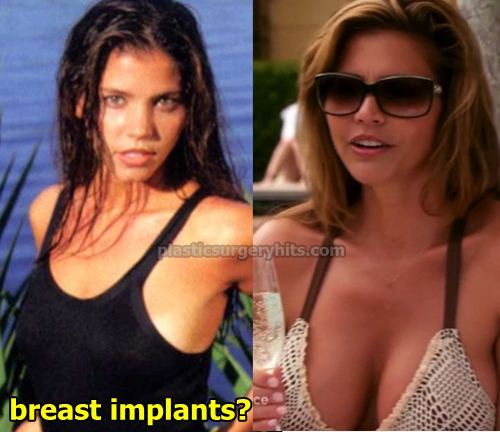 Charisma Carpenter Breast Implants
