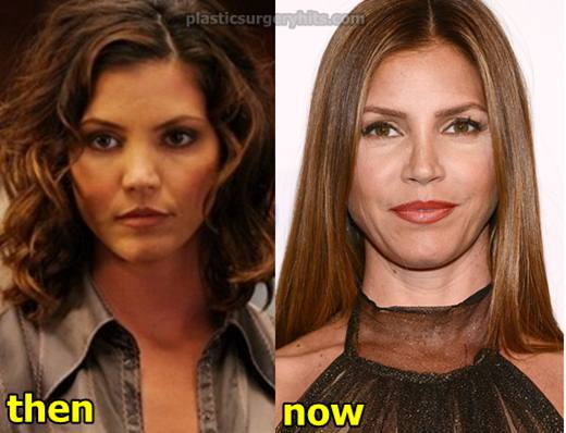 Charisma Carpenter Plastic Surgery