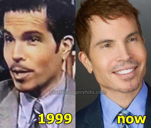 Gerald Posner Plastic Surgery Before and After