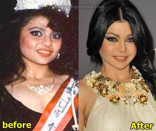 Haifa Wehbe Plastic Surgery Before and After