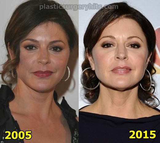 Jane Leeves Plastic Surgery fact or Rumor