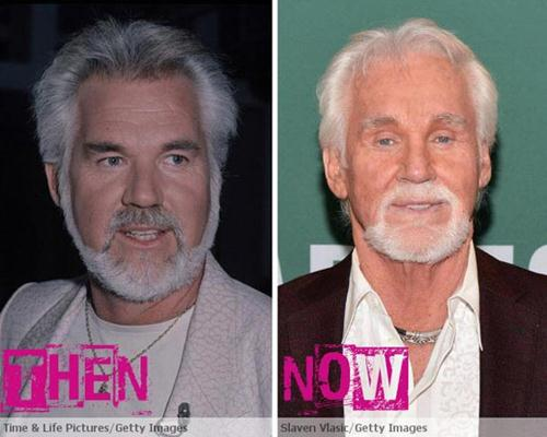 Kenny Rogers Plastic Surgery Before & After