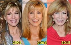 Leeza Gibbons Plastic Surgery
