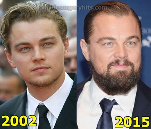 Leonardo DiCaprio Plastic Surgery Before and After
