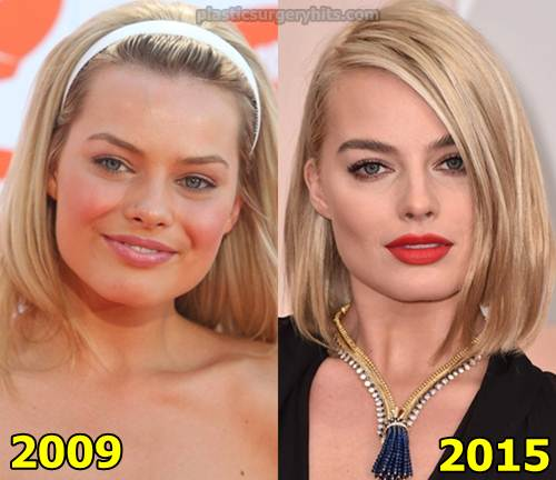 Margot Robbie plastic Surgery Fact or Rumor