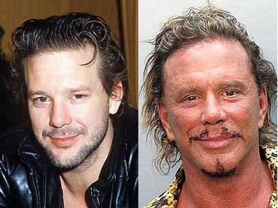 Mickey Rourke Plastic Surgery Gone Wrong