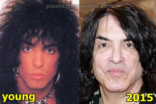 Paul Stanley Plastic Surgery Before and After