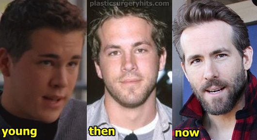 Ryan Reynolds Plastic Surgery