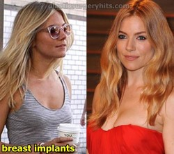 Sienna Miller Breast Implants
