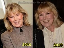 Susan Hampshire Plastic Surgery news