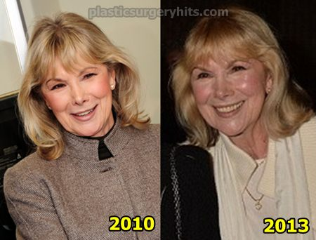 Susan Hampshire Plastic Surgery news