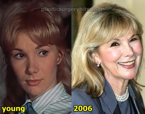 Susan Hampshire Plastic Surgery
