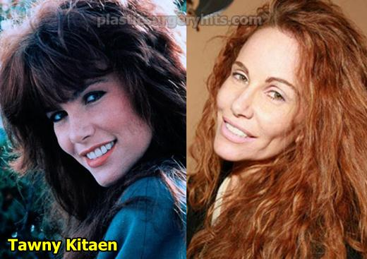 Tawny Kitaen Plastic Surgery Before and After