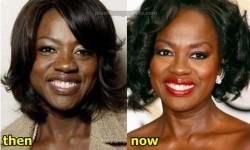 Viola Davis Plastic Surgery
