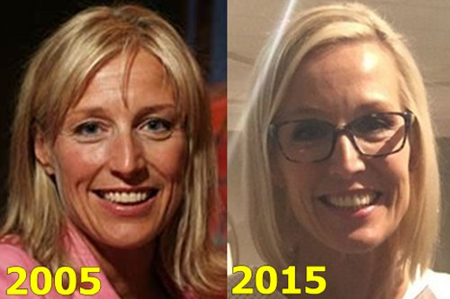 Candice Olson Plastic Surgery Fact or Rumor