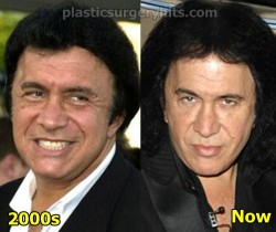 Gene Simmons Plastic Surgery Before and After