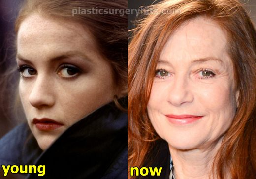 Isabelle Huppert Plastic Surgery Fact or Rumor