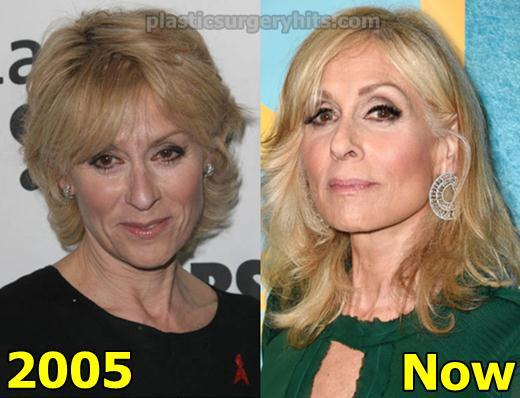 Judith Light Plastic Surgery Fact or Rumor